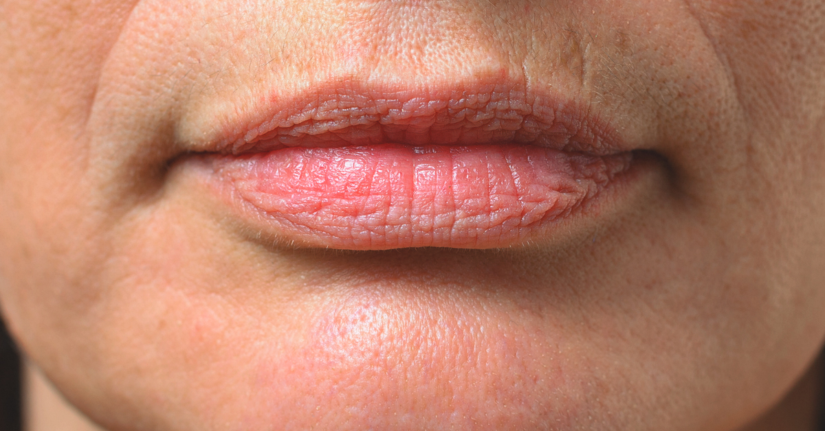 smokers lips 1200x628 facebook - How To Get Rid Of Dark Lips From Smoking Weed