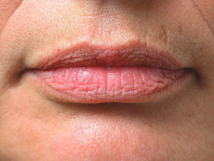 Hyperpigmentation On Upper Lip Causes   Liptutor.org