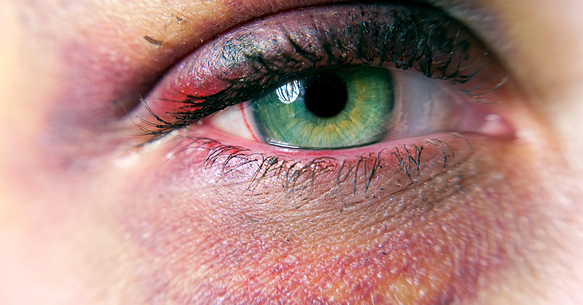 Home Remedies For Black Eyes Plus How Long They Take To Heal