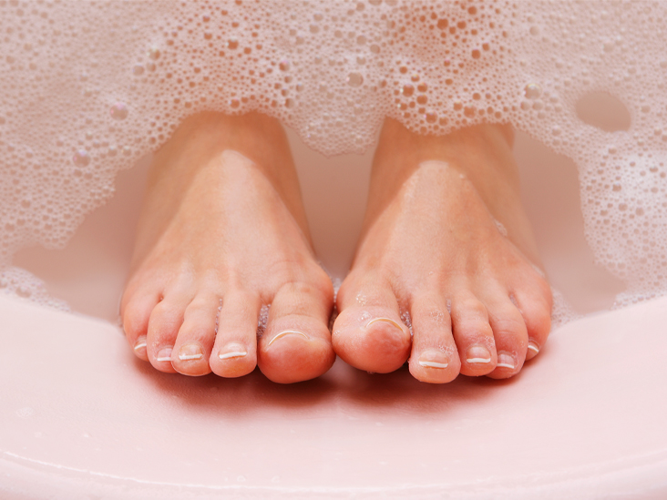 Why Are My Feet Peeling What Are The Most Common Causes