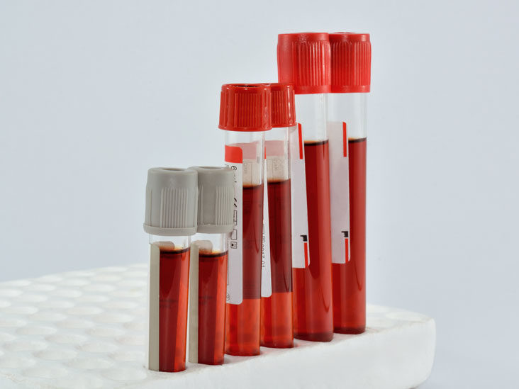 Positive genital false herpes test Herpes Blood