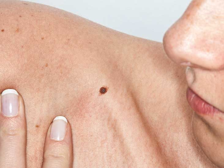 Skin Cancer Pictures And Facts What You Need To Know