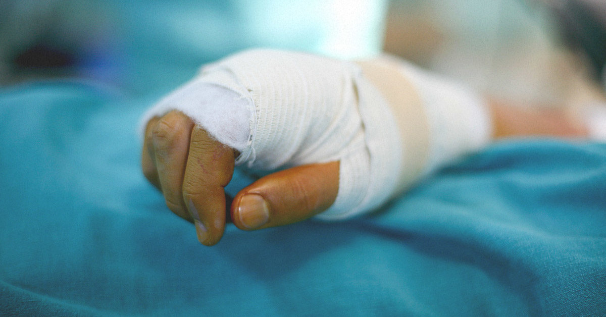 Degloving Images Types Treatment And Complications