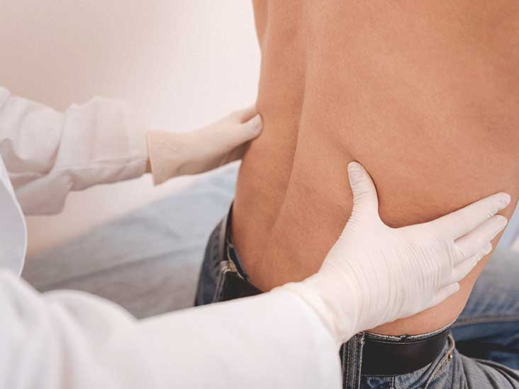 Synovial Cyst: Symptoms and Treatment