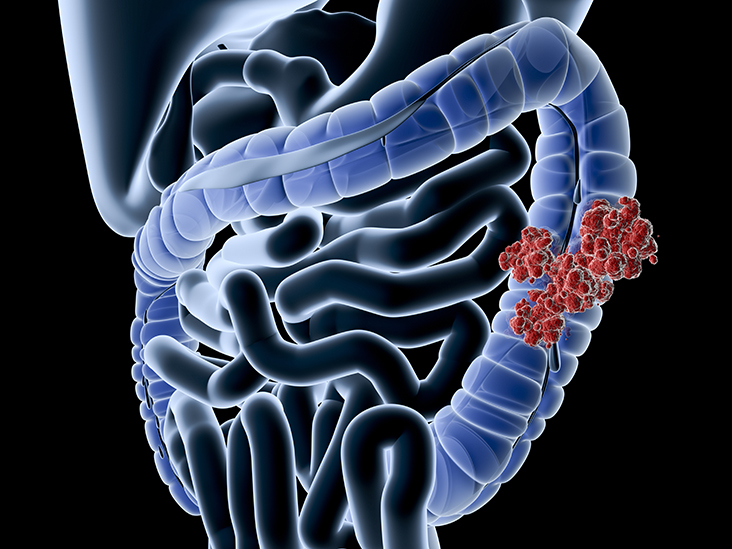 Colorectal Cancer Symptoms Causes Diagnosis And More