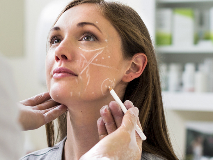 What Are The Side Effects Of Facial Fillers