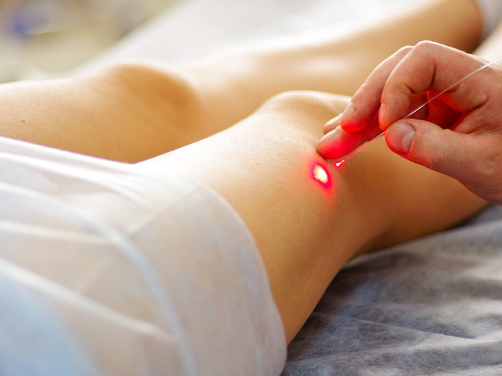 Skin papillomatosis treatment. Oxiuros significado en el diccionario