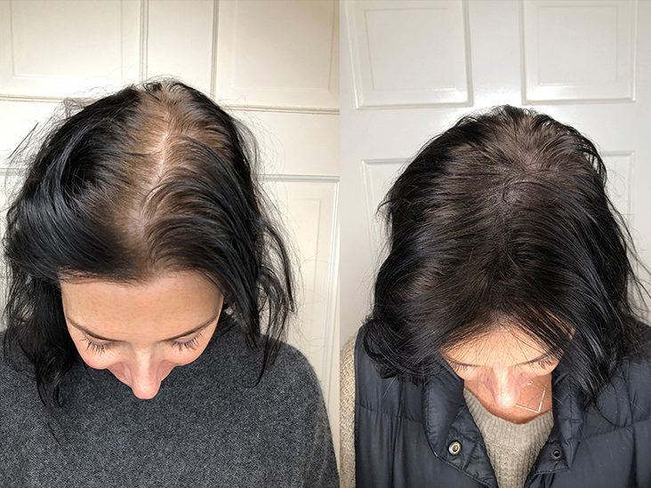 Scalp Micropigmentation Benefits Side Effects Before After Pics Men's hair, haircuts, fade haircuts, short, medium, long, buzzed, side part, long top, short sides, hair style, hairstyle, haircut, hair color. scalp micropigmentation benefits side