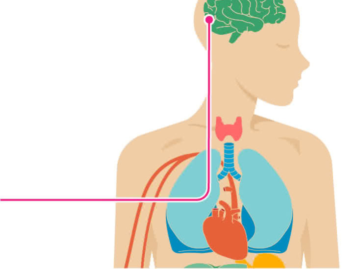 The Effects Of Stroke On The Body