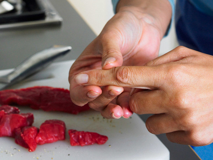 Cut Finger First Aid Treatment Aftercare And Recovery Timeline