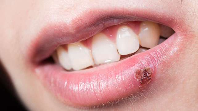 can keto diet cause cold sores?