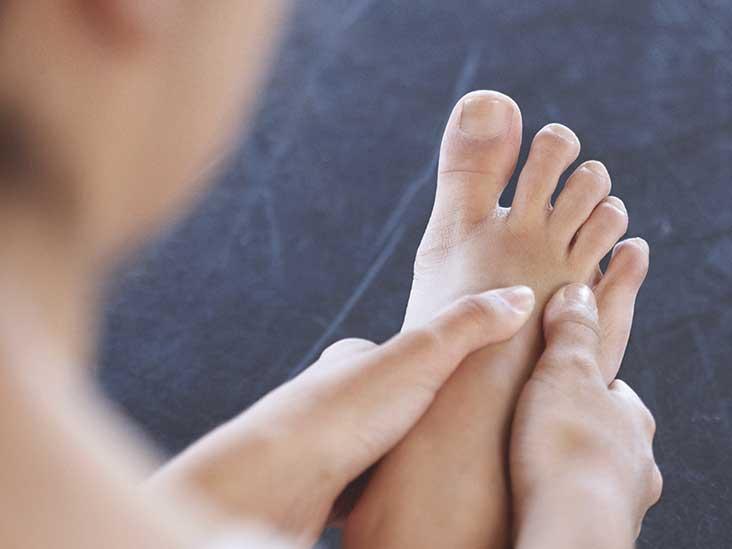 Plantar Fibroma: Symptoms, Treatment