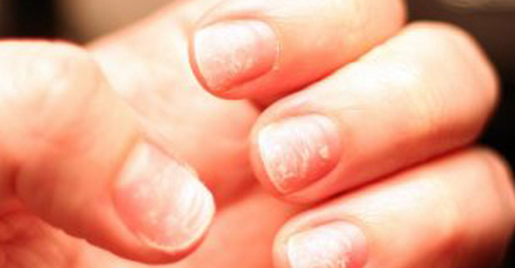 What Do Nail Problems Mean For Your Health
