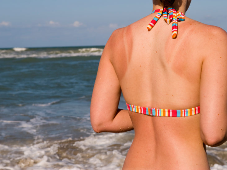 Sunburn Treatment: What Really Causes a Sunburn and How to Treat It