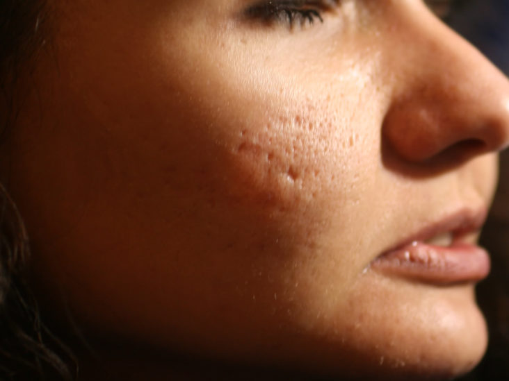 Types Of Acne Scars And How To Get Rid Of Them All