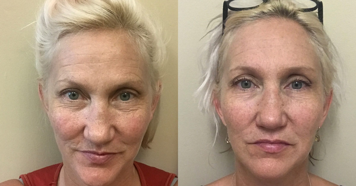 Face Yoga Does It Work