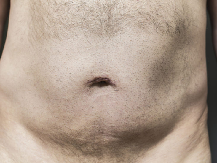 Shaving Pubic Hair Why You Shouldn T Do It