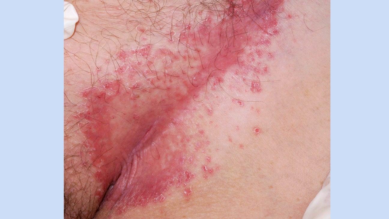 does genital psoriasis burn