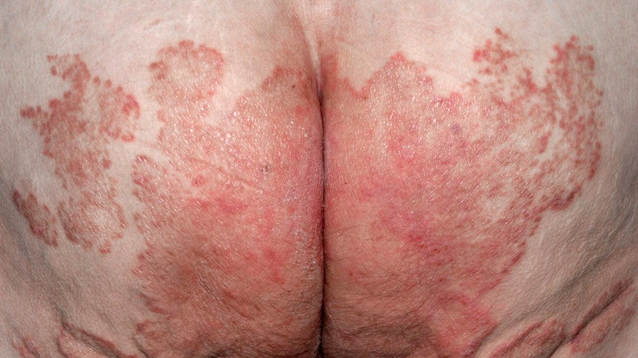 what helps genital psoriasis)
