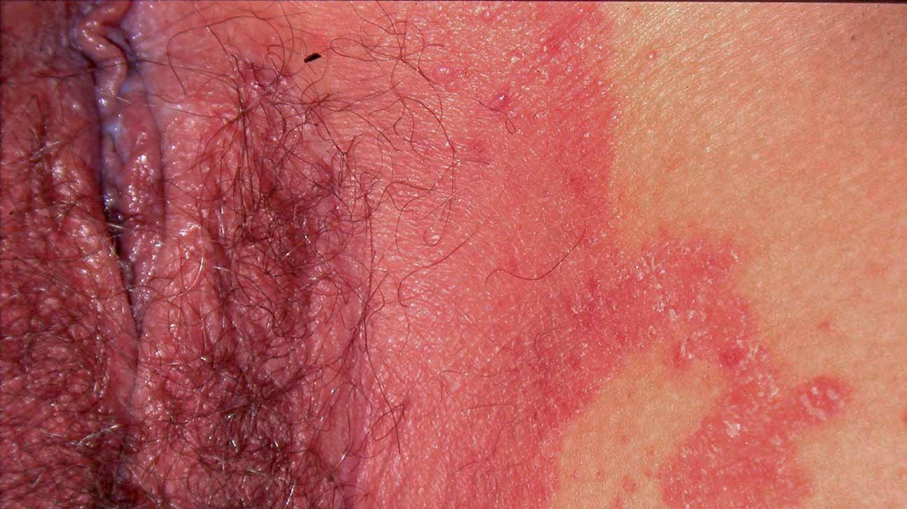 does genital psoriasis burn)
