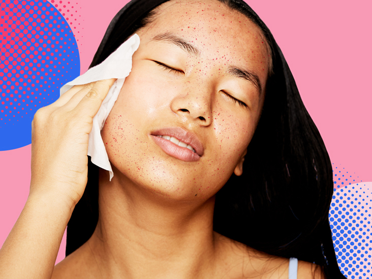 Subclinical forehead get on rid acne of Subclinical Acne