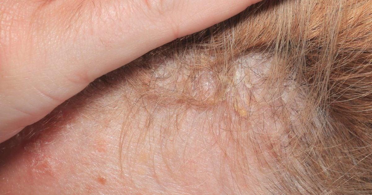 psoriasis i håret