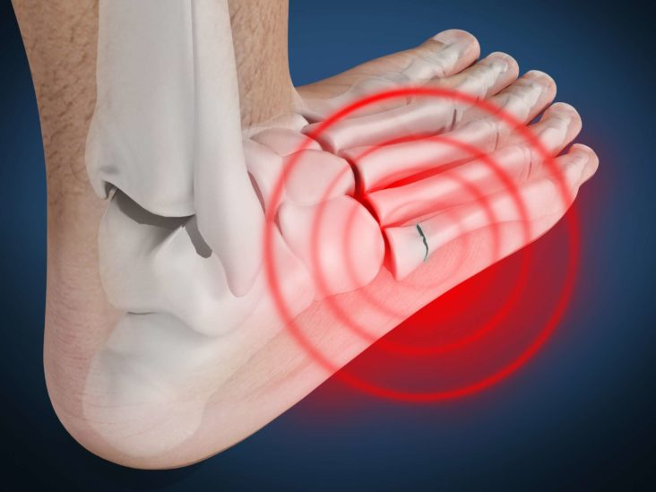 pain on top of the foot