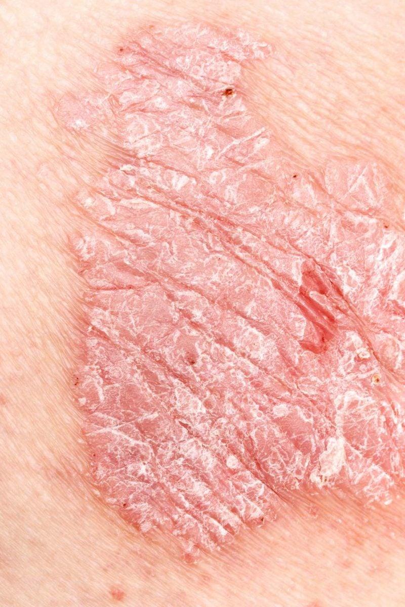 Dry skin on anus