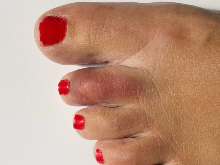Pain At Big Toe Joint Causes And Relief