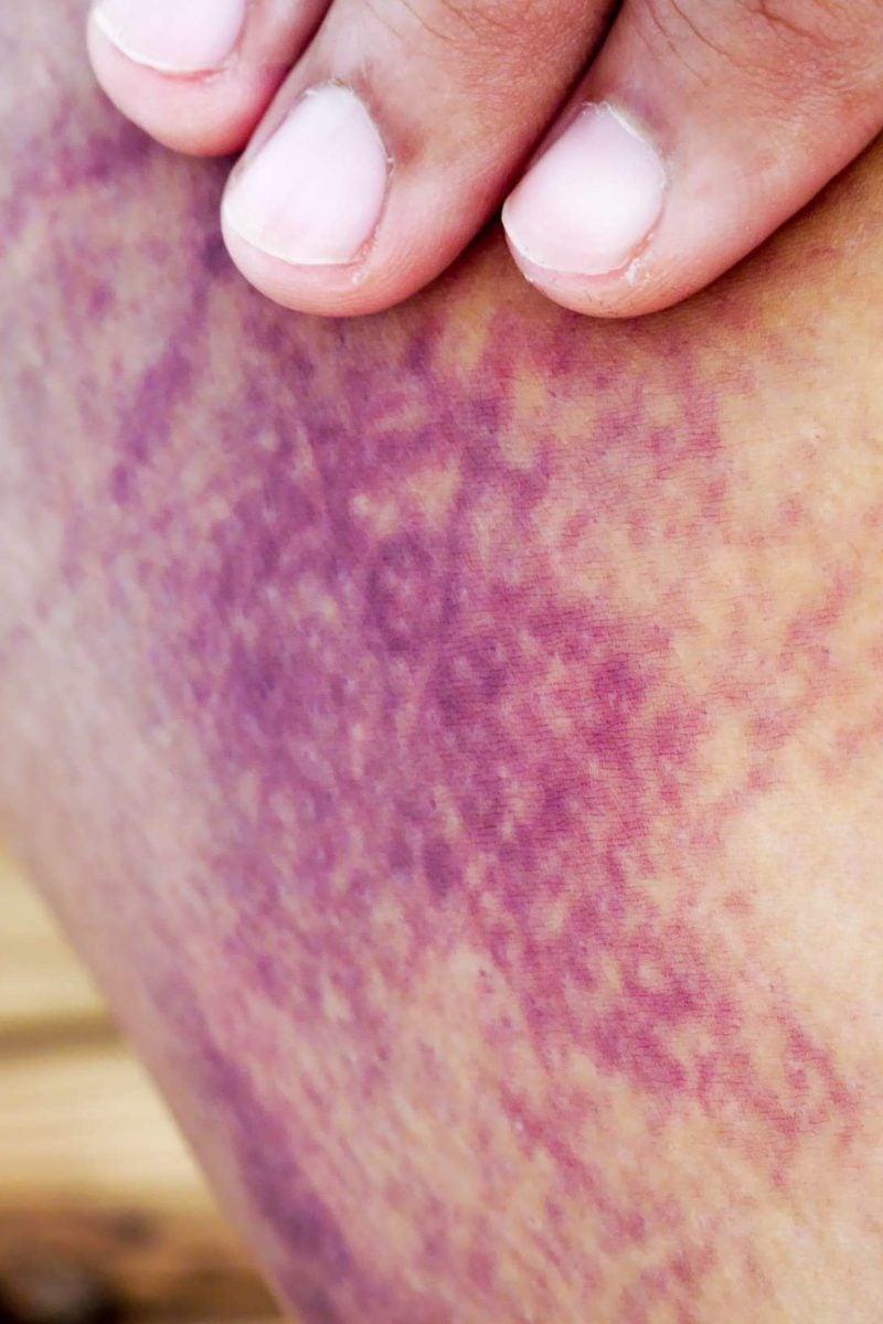 Internal Bleeding Symptoms Treatment And Complications