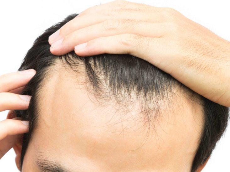 Receding Hairline Treatment Stages And Causes