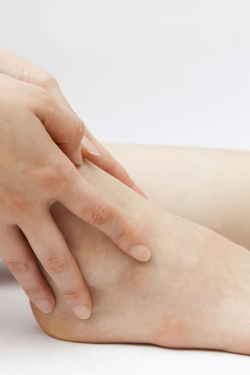 Itchy Ankles Causes Rash And Treatment