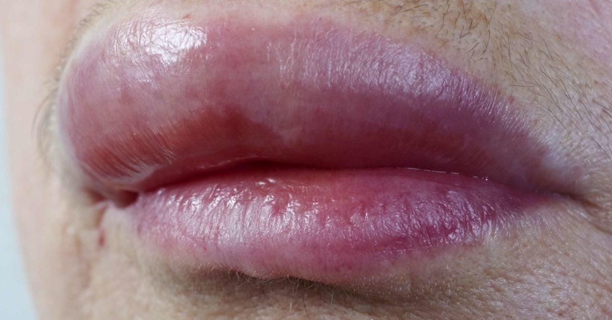 Puffy Lips
