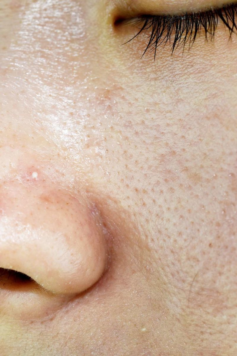 Oily skin: 12 treatments, causes, and prevention