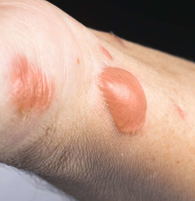 Burn Scars Treatment Removal And