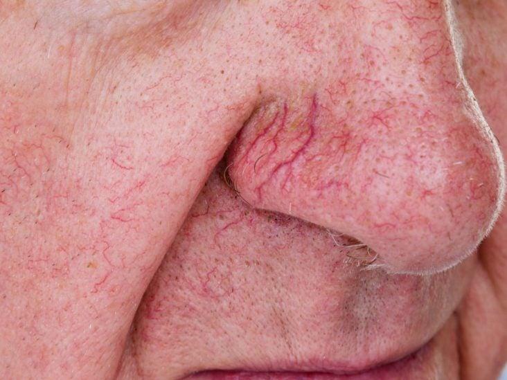 veins under skin