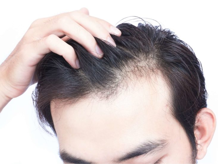 Vitamin D Deficiency Hair Loss Symptoms And Treatment