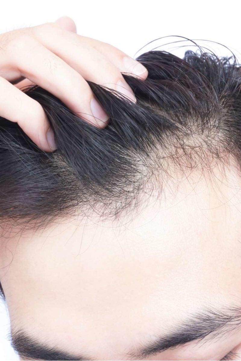 where do you go for hair loss