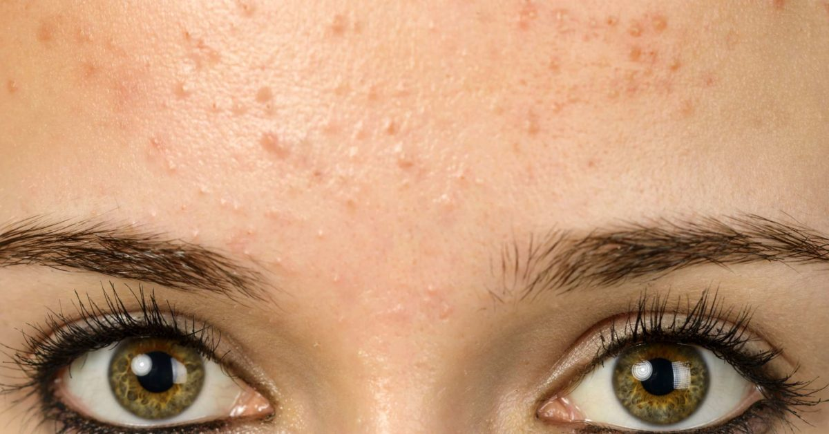 Forehead Acne And Pimples Causes Treatment And Prevention