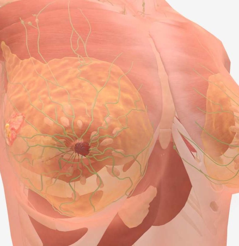 Stage 4 Breast Cancer Symptoms And Prognosis