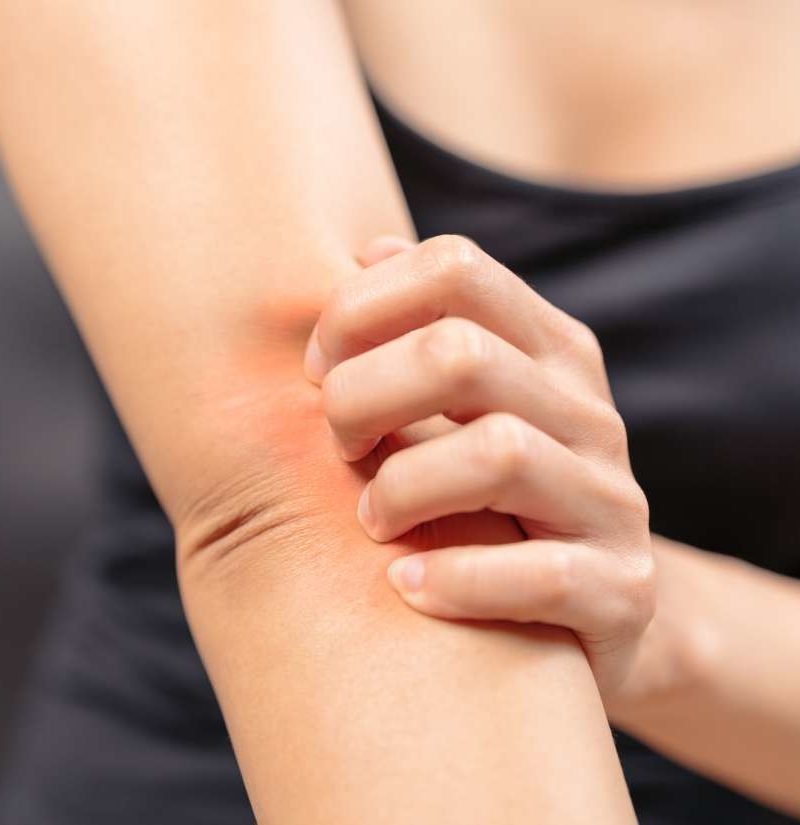 Menopause Itching Causes Types Home Remedies And Treatments