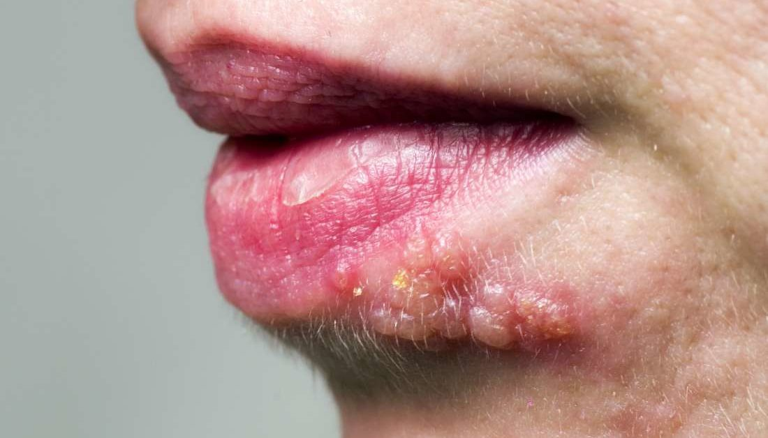 Shingles On The Face Symptoms Treatment And Causes