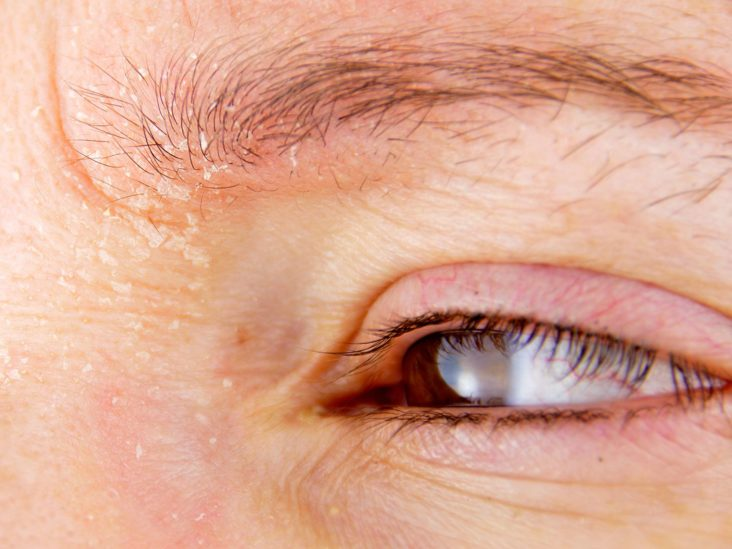 Eyebrow Hair Loss Causes And Treatments