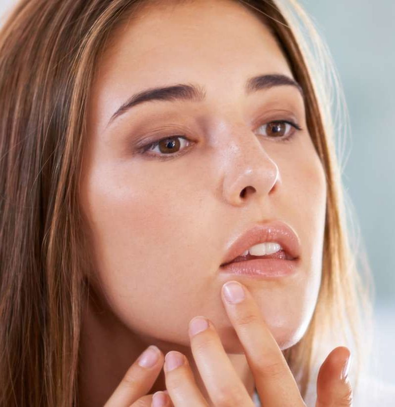 Cold Sore Vs Pimple Differences Similarities And Treatment