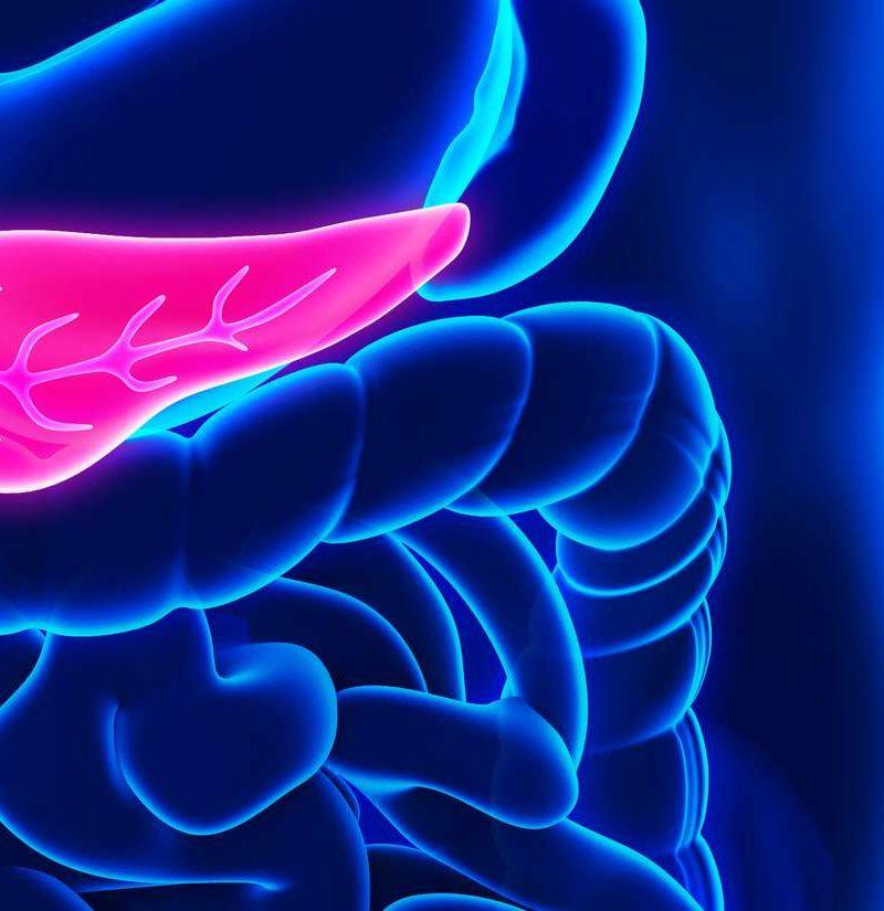 diabetes de adenocarcinoma de próstata tipo 2