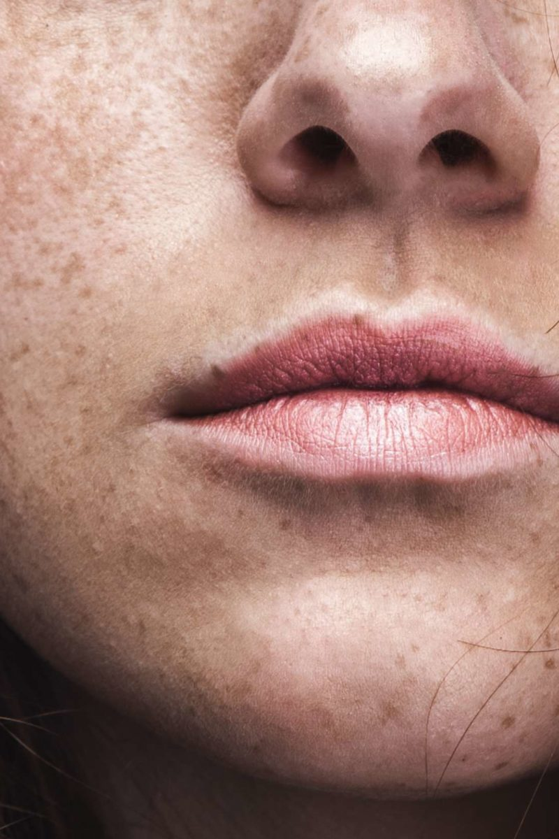 Freckles Causes Identification And Risks