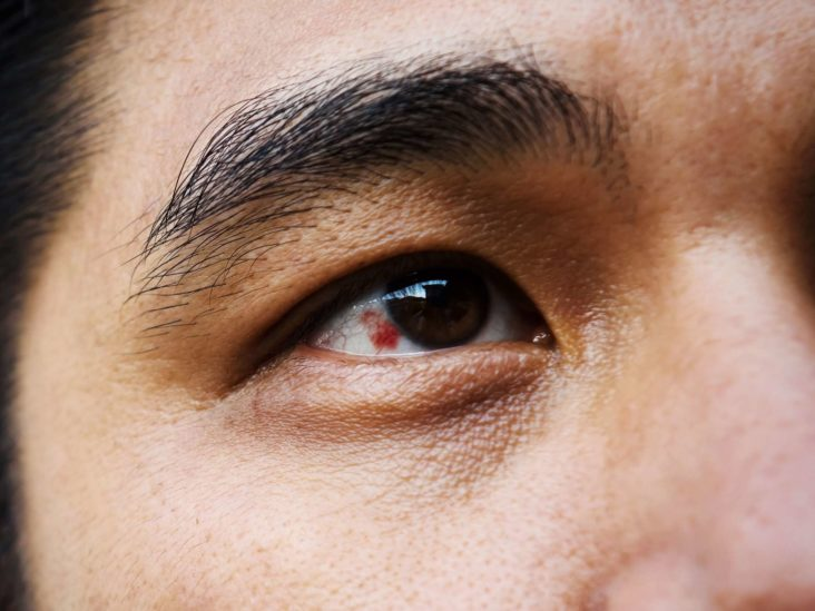 What are eye floaters? 5 eye problems you shouldn't ignore