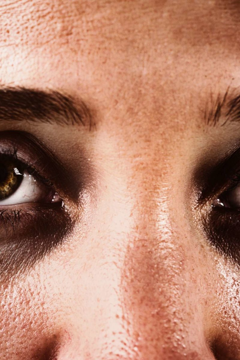 Dark Circles Under The Eyes Causes And Treatments