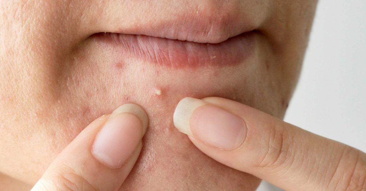 Pimples On The Chin What It Means And How To Get Rid Of Them