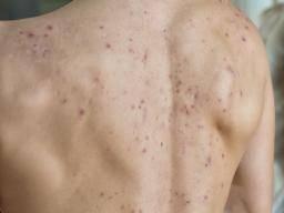 acne prison-breaking past 50